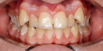 Нейтральное соотношение зубных рядов и апикальных базисов фото до лечения
