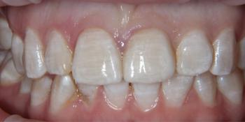 Цельнокерамические виниры на центральные резцы верхней челюсти фото после лечения