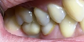 Восстановить жевательную функцию после утраты зуба более года назад фото после лечения