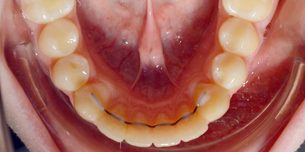 Нейтральное соотношение зубных рядов и апикальных базисов