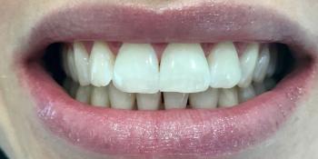 Чистка и отбеливание зубов Air-Flow & ZOOM 4 фото после лечения