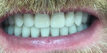 Жалобы на полное отсутствие зубов на верхней и нижней челюсти фото после лечения