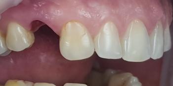 Дентальная имплантация 1 зуба на верхней челюсти, металлокерамическая коронка с опорой на имплантат фото до лечения