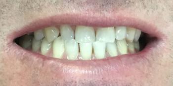 Одномоментная имплантация Osstem переднего зуба фото после лечения