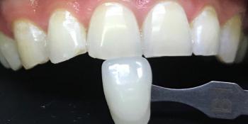 Результат отбеливания системой Zoom 4 фото после лечения