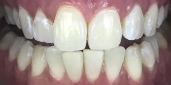 Профессиональная гигиена полости рта и офисное отбеливание ZOOM 4 фото после лечения