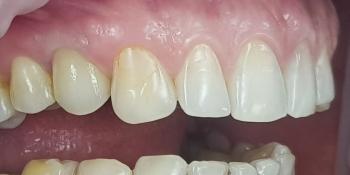Дентальная имплантация 1 зуба на верхней челюсти, металлокерамическая коронка с опорой на имплантат фото после лечения