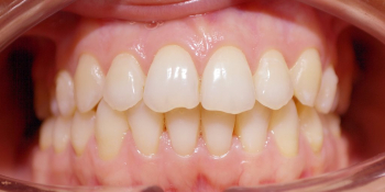 Исправление скученности зубов на верхней и нижней чеюсти фото после лечения