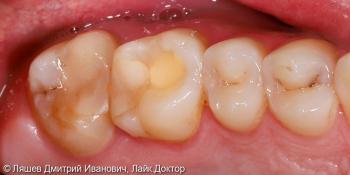 Восстановлении зуба керамической вкладкой по технологии CAD/CAM CEREC фото до лечения