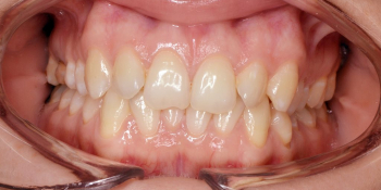 Исправление скученности зубов на верхней и нижней чеюсти фото до лечения
