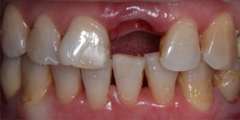Одномоментная имплантация и протезирование металлокерамической коронкой фото до лечения