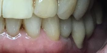 Восстановление отсутствующего зуба имплантатом фото после лечения