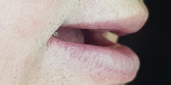 Дентальная имплантация на верхней и нижней челюсти с удалением всех зубов по показаниям фото до лечения