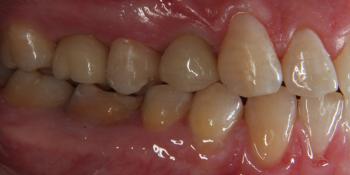 Дентальная имплантация 3х зубов на верхней челюсти фото после лечения