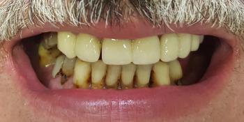 Имплантация зубов верхней и нижней челюсти, полностью фото до лечения