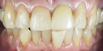 Дентальная имплантация 1 зуба на верхней челюсти, цельнокерамическая коронка с опорой на имплантат фото после лечения