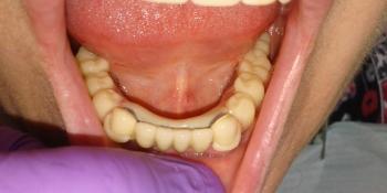 8 металлокерамических коронок, 2 ацеталовых протеза фото после лечения