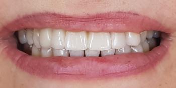 Дентальная имплантация с удалением зубов в переднем отделе на верхней челюсти фото после лечения