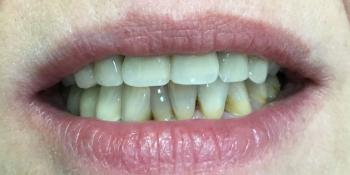 Комплексное восстановление зубов верхней и нижней челюсти фото после лечения
