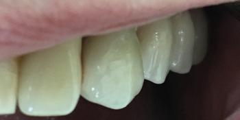 Протезирования боковой группы зубов на верхней челюсти слева на имплантатах фото после лечения