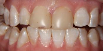 Цельнокерамические виниры на центральные резцы верхней челюсти фото до лечения